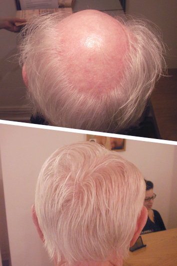 kenneth hair loss - before and after