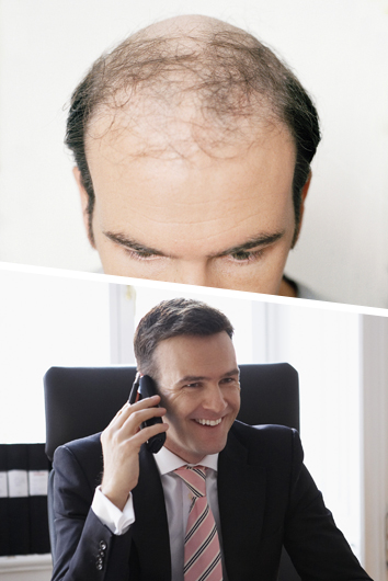 richard hair loss - before and after