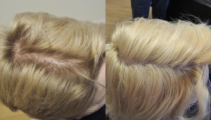 Female Pattern Baldness International Hair Studio Beauteous Female Pattern Baldness Pictures