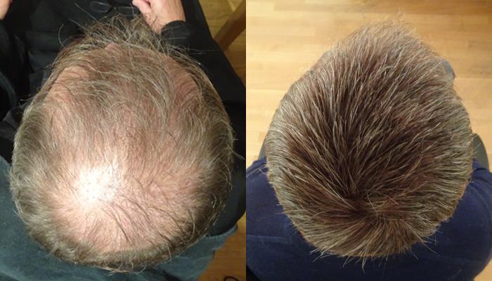 Thinning crown | International Hair Studio